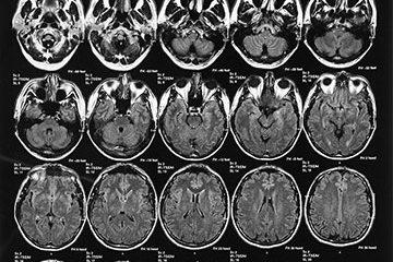brain-injury-thumb